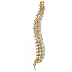 עמוד השדרה שלנו לא ישר.